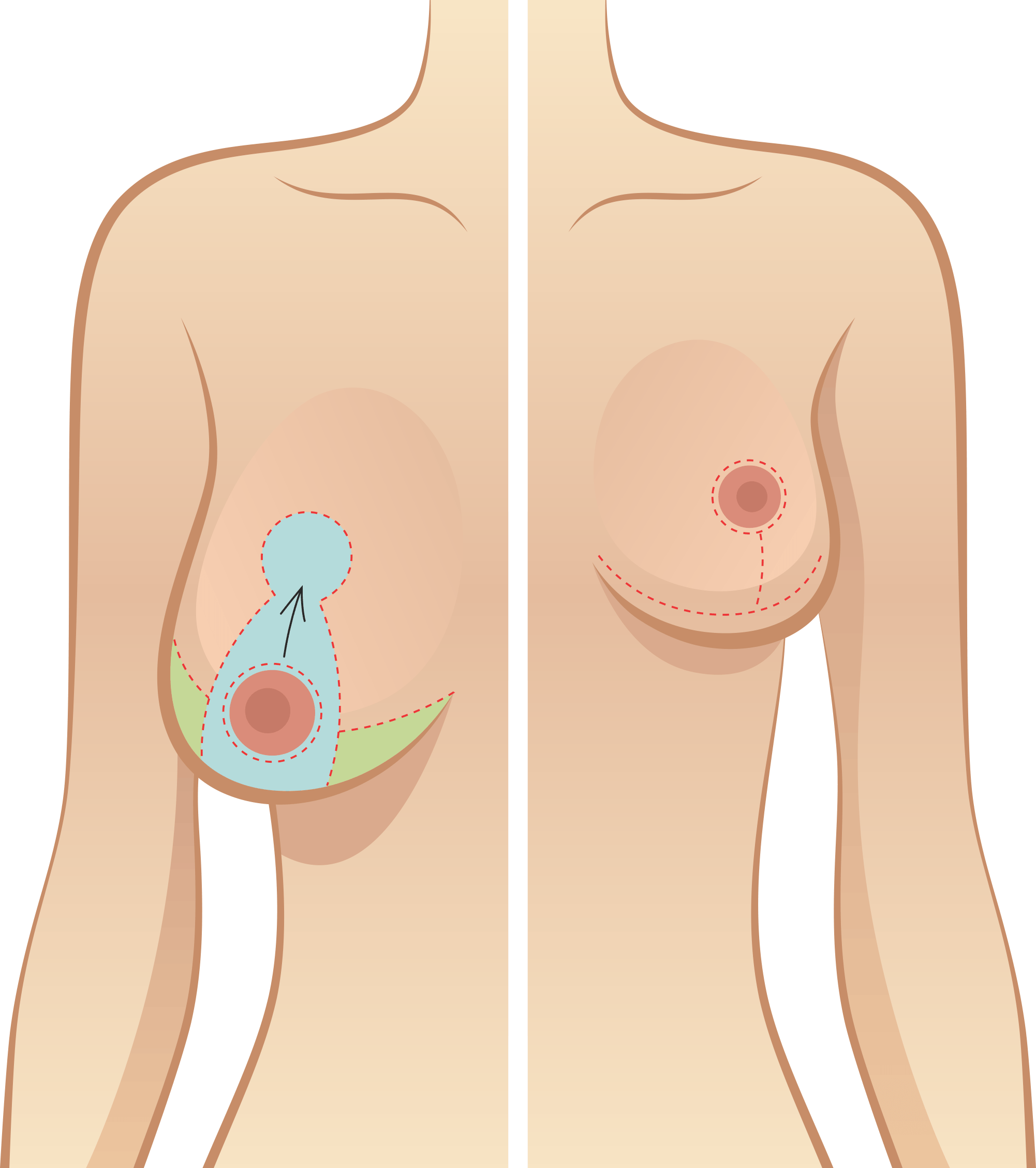 Breast Reduction Cosmetic  Surgery in Houston